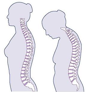 Osteoporosis bone disease